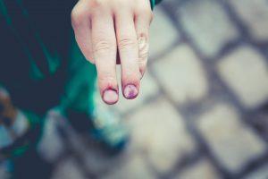 Injured fingers